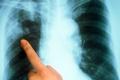 По итогам 2016 года в Зауралье уровень заболеваемости туберкулезом снизился на 37,1%